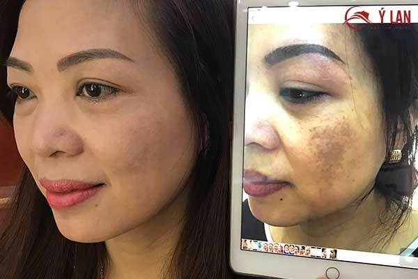 Derma_Skin_-_Giai_Phap_Dieu_Tri_Nam_Mang_Hieu_Qua_