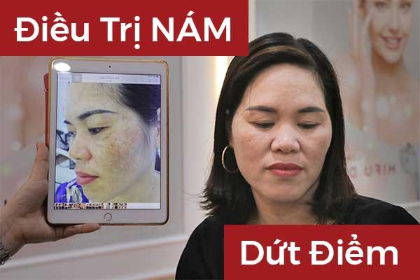 Nam_Da_Co_Dieu_Tri_Dut_Diem_Duoc_Khong?_Cach_Dieu_Tri_Nam_Tai_Phat_Hieu_Qua?