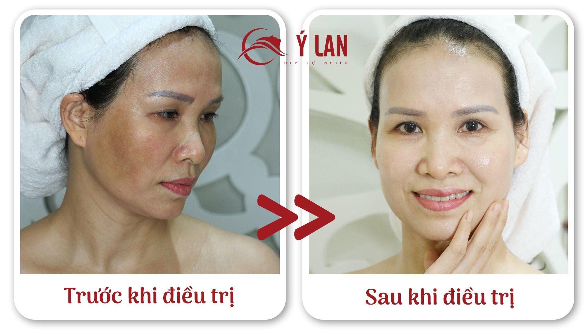 Nhan_Dien_Cac_Loai_Nam_Da_Va_Cach_Dieu_Tri_Hieu_Qua