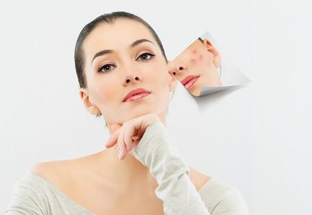 Trị sẹo an toàn hiệu quả không gây tổn thương da