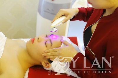 Công nghệ điều trị mụn thịt Laser Fractional siêu vi điểm