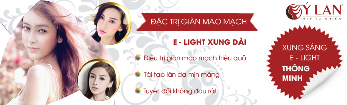 Dac_tri_gian_mao_mach