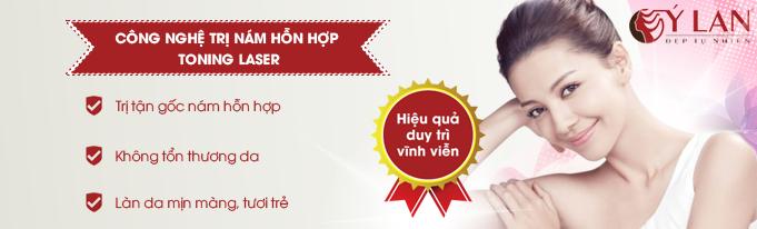 tri-nam-hon-hop-001