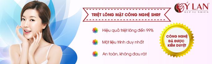 Triet_long_mat