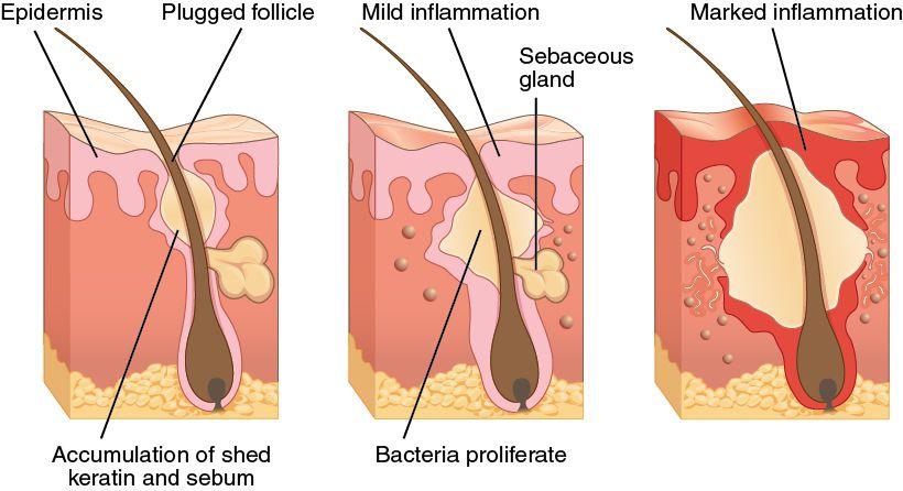 Phương pháp chữa mụn ở lưng