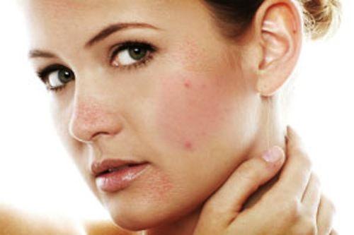 cách trị mụn và vết thâm trên mặt