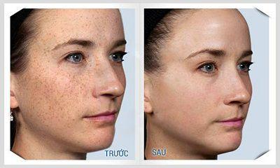 Chữa trị tàn nhang trên mặt