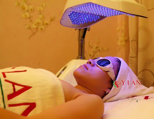 Phương pháp trị mụn bằng ánh sáng xanh