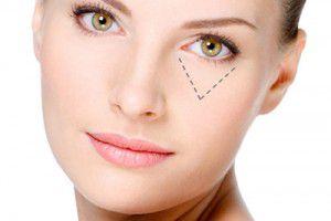 cách trị mụn quanh mắt
