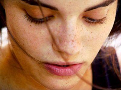 Điều trị tàn nhang ở trên mặt