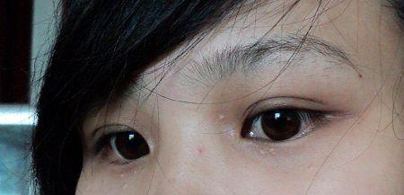 Cách chữa mụn ở mắt