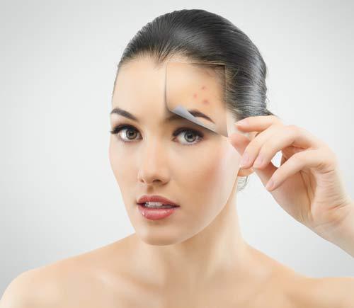 Cách chữa sẹo hiệu quả