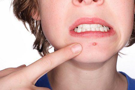Chữa mụn xung quanh miệng