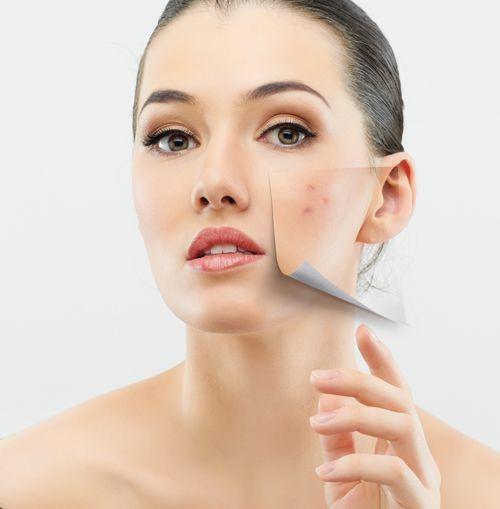 Cách chữa vết sẹo
