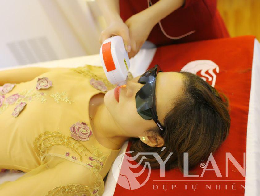 Tẩy lông vĩnh viễn ở Hà Nội