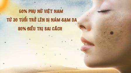 Phụ nữ Việt ngày càng bị nám nhiều, tại sao?