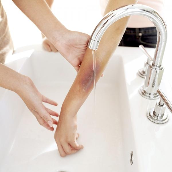 Tẩy lông chân tại nhà làm tổn thương da như thế nào?