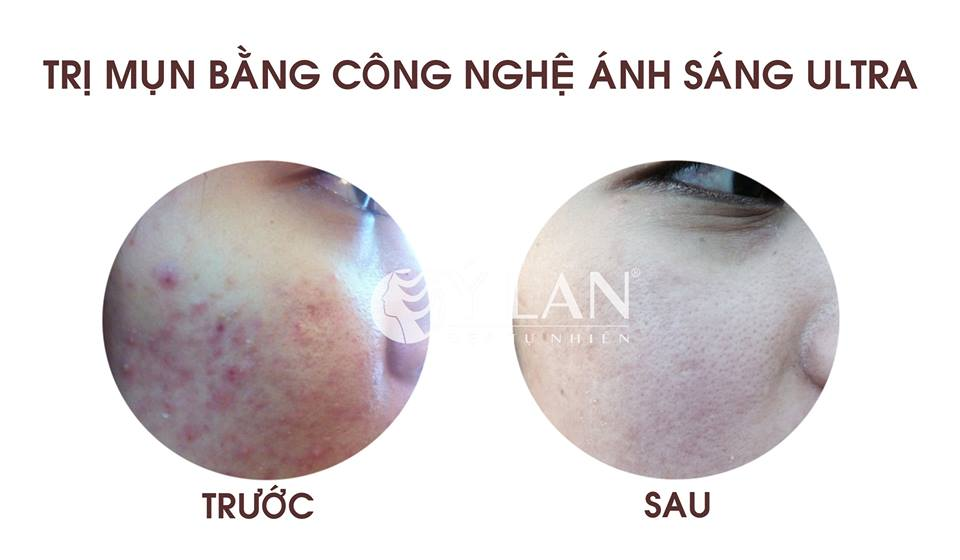 Hinh_anh_truoc_va_sau_khach_hang_tri_mun