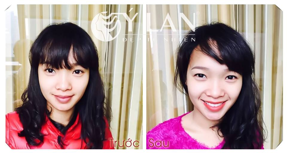 Hinh_anh_truoc_va_sau_phun_moi_tham_my