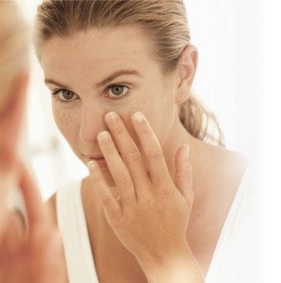 Có nên trị nám khi da bị mụn?