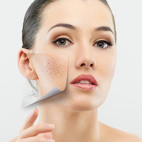 Trị da khô, nứt nẻ mùa thu đông với 4 loại mặt nạ đơn giản
