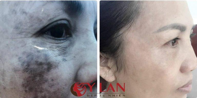 Ảnh 4. Da của chị Hiền đã sạch hết nám sau khi điều trị tại thẩm mỹ viện Ý Lan