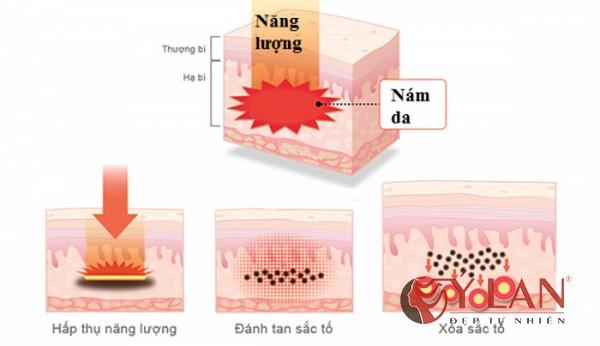 Vì sao nên chọn cách trị nám da bằng Pastelle?