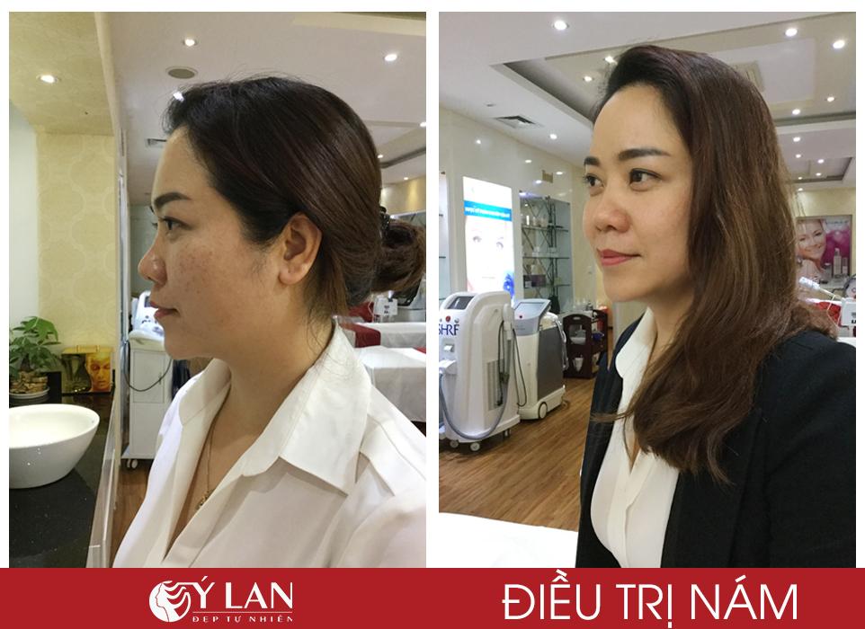 Hình ảnh trước và sau khi khách hàng trị nám tại TMV Ý Lan