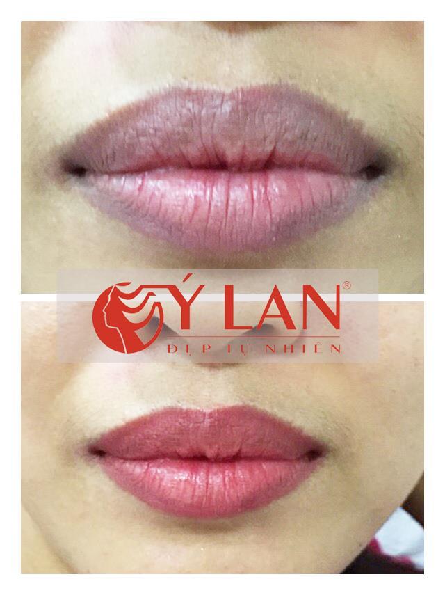 kem trị thâm môi