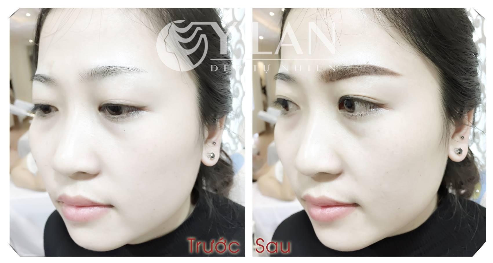 long-may-ngan-thua-duoc-khac-phuc-tai-tham-my-vien-y-lan
