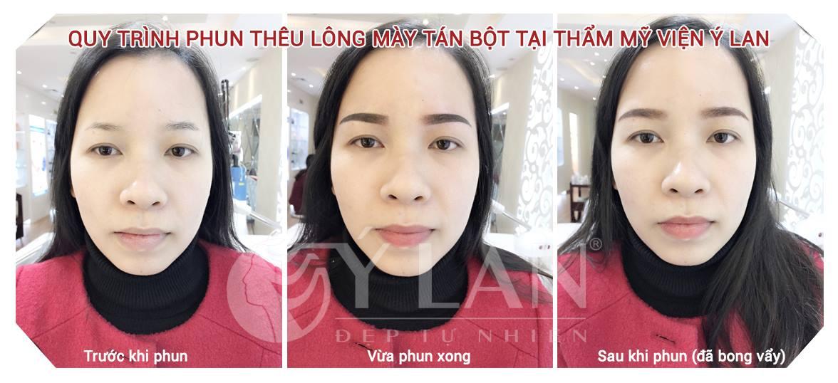 qua-trinh-bong-tu-nhien-cua-long-may-sau-khi-phun-theu