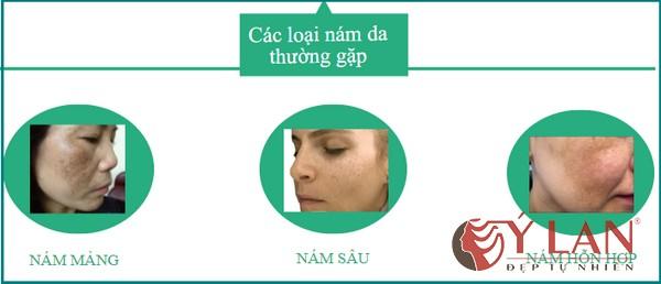 cac-loai-nam-da-mat-chinh-hien-nay-2