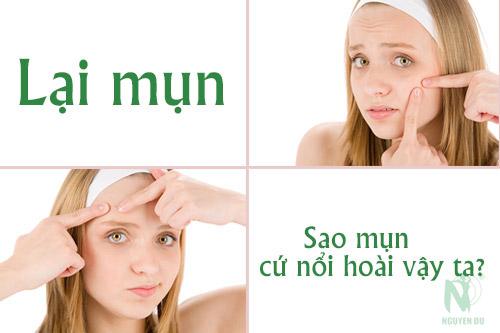 cach-chua-tung-loai-mun-1