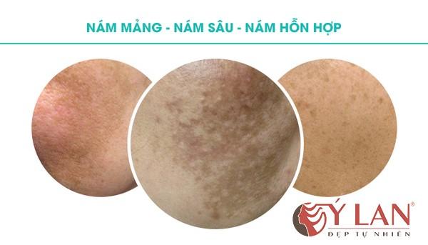 co-3-dang-nam-da-chinh-hien-nay-4