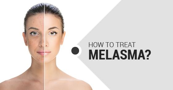 Các phương pháp trị nám da tốt nhất cho tình trạng của bạn