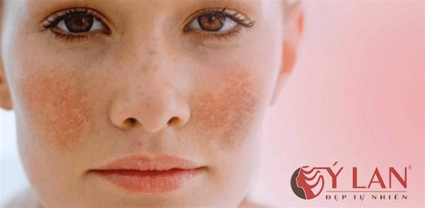 Tổng hợp trọn bộ cách điều trị da mặt bị nám không thể bỏ qua