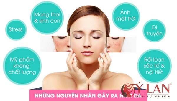co-nhieu-nguyen-nhan-gay-nam-da-tan-nhang-2