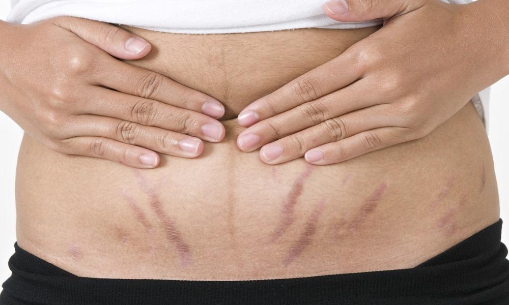 Rạn da khi mang thai phải làm sao?
