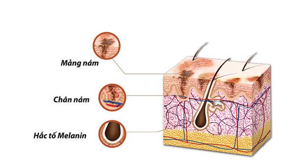 ban-chat-cua-nam-da-la-tinh-trang-tang-sinh-sac-to-melanin-2