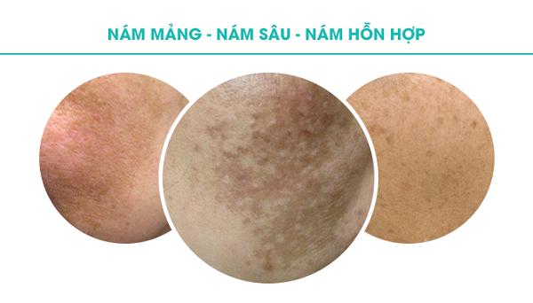 Các loại nám da phổ biến nhất hiện nay là gì? Cách điều trị ra sao?