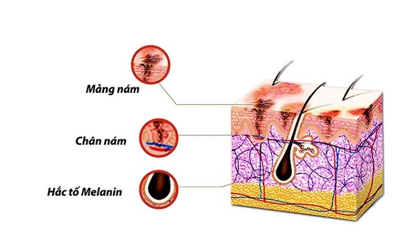 nam-da-la-hoi-chung-roi-loan-sac-to-melanin-1
