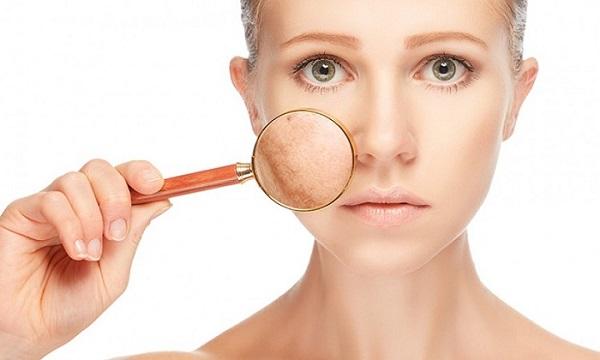 Bác sĩ giải đáp câu hỏi lớn nhất: vì sao bị nám da mặt?
