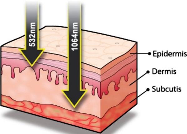 Tất cả những gì bạn nên biết trước khi chọn trị nám da bằng Laser