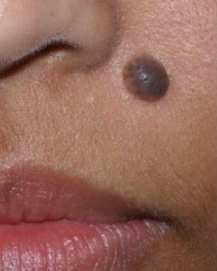 Dại dột khi áp dụng cách trị mụn ruồi bằng tỏi