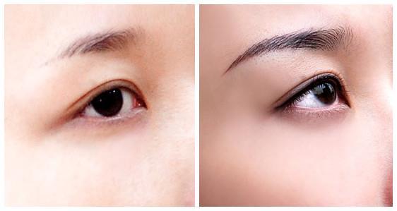 Mắt cận thị phun mí có ảnh hưởng gì không?
