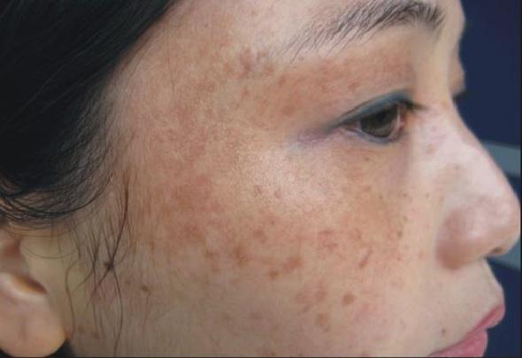 Tìm hiểu nguyên nhân và cách khắc phục tình trạng nám da