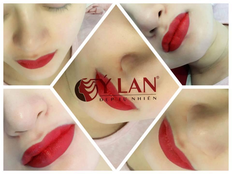 Cấy màu môi có hại tới sức khỏe sau này không?