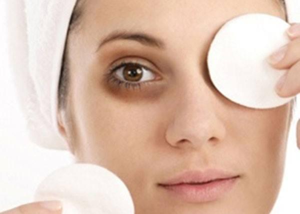 Cách xử lý quầng thâm mắt hiệu quả