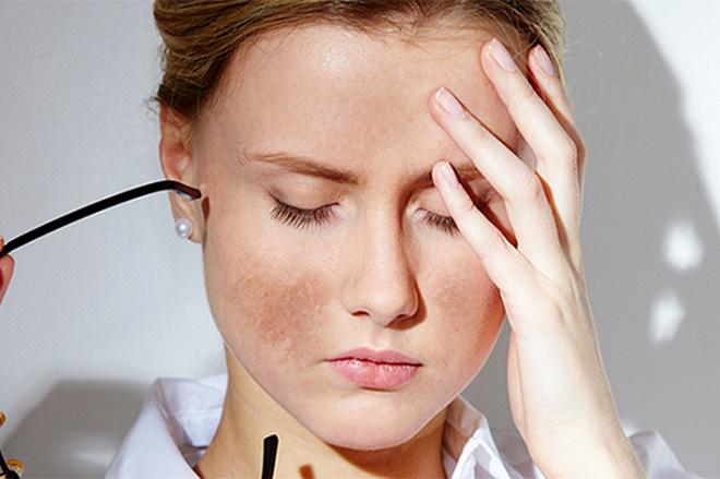 Có cách nào vừa trị nám tàn nhang hiệu quả nhất không?