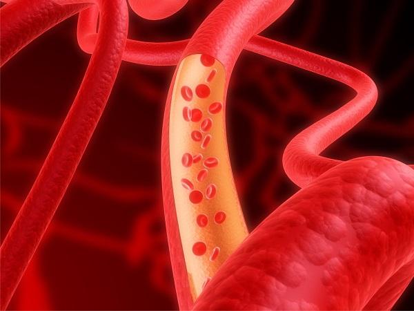 Nám da do máu xấu theo nghiên cứu của Tây y